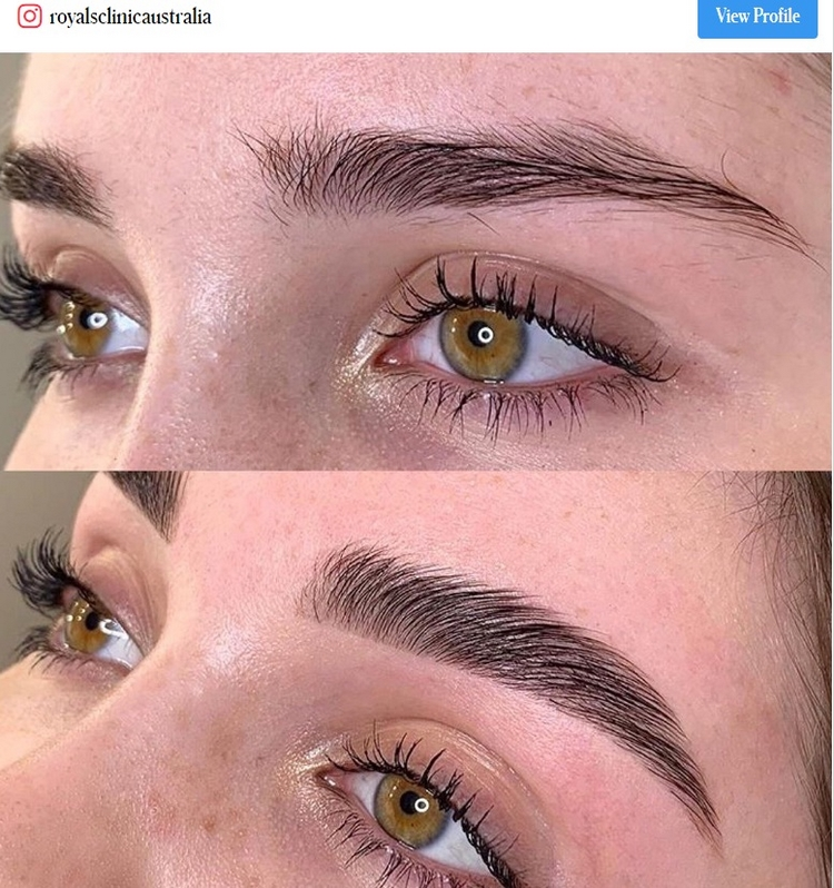 brow lamination before and after how much does the treatment cost